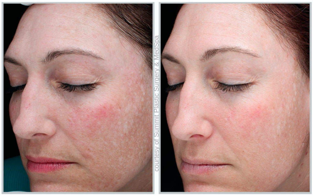 Halo Hybrid Fractional Treatment